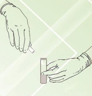 مخلوط کردن دو ظرف A و B کیت تشخیصی همو تست RRS